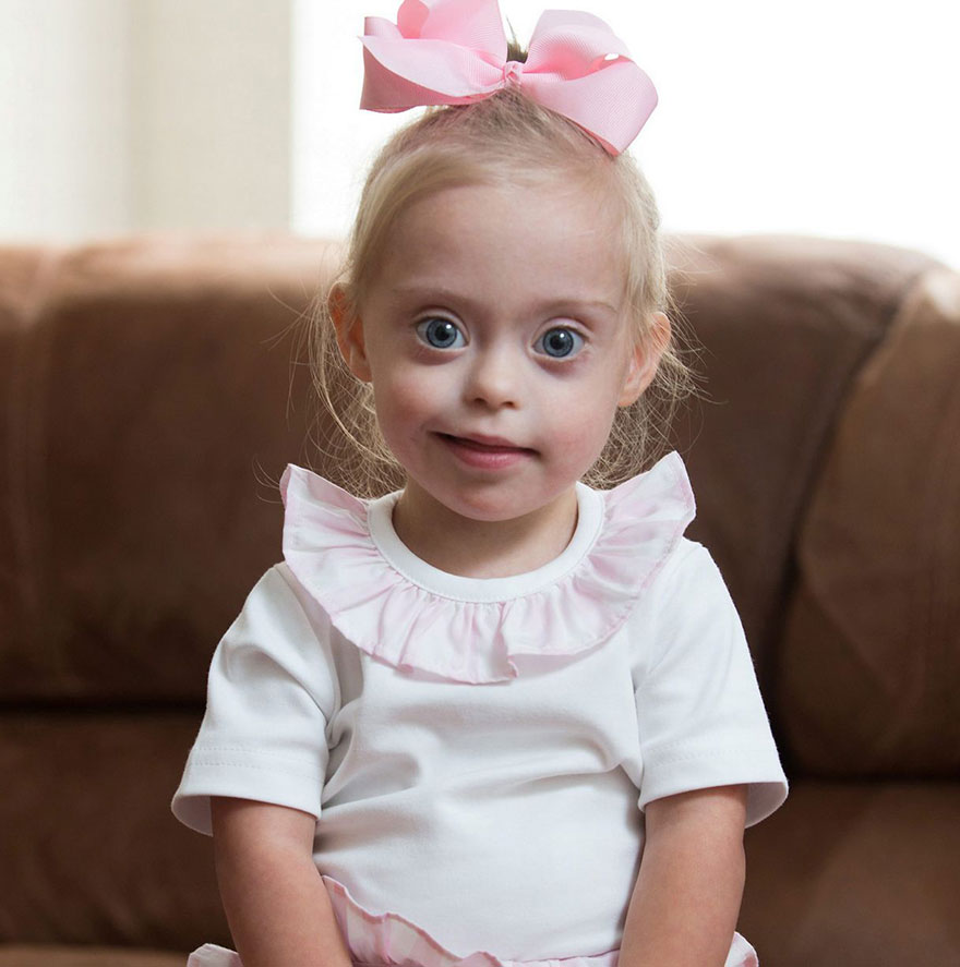 Down syndrome model toddler girl connie rose seabourne by Ross Parry