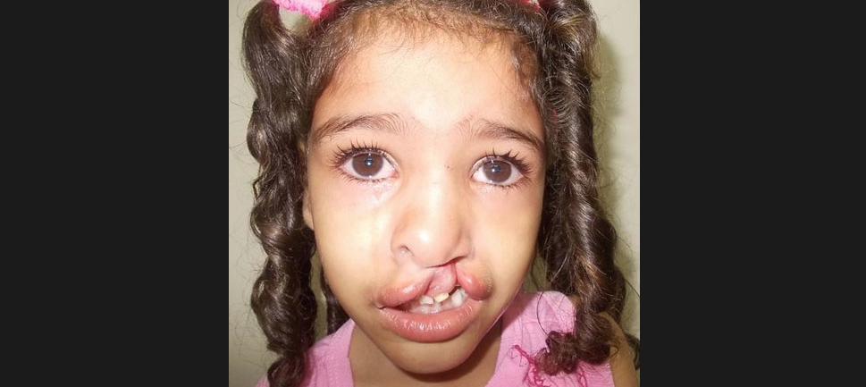 Bianca - Sample Cleft Palate